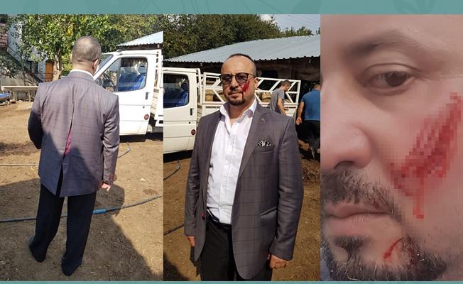 Bursa'da haciz sırasında avukatın yanağını ısırmıştı, cezası belli oldu