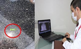 Bursa'da Küçük Kızın Midesinden Çıkan Cisim Şaşırttı